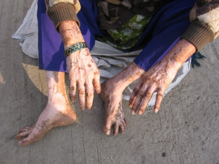 Effect of Pesticides on the Skin of a Farmer.